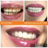 خدمات دندانپزشکی با قیمت مناسب